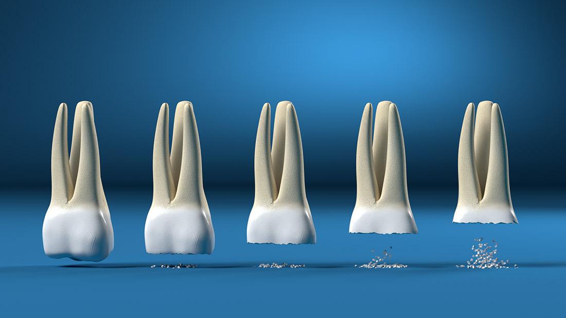 digrignare e serrare i denti