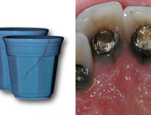 denti crakkati